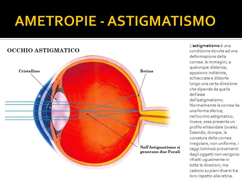Lastigmatismo è una condizione dovuta ad una deformazione della cornea: le immagini, a qualunque distanza, appaiono indistinte, schiacciate e distorte