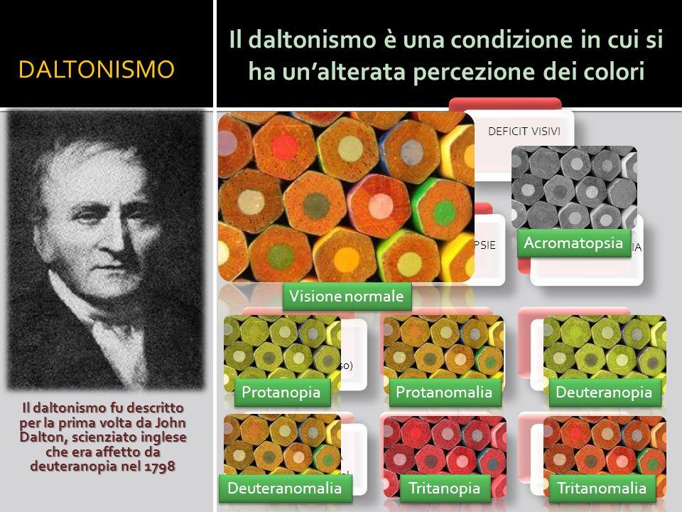 DALTONISMO Il daltonismo fu descritto per la prima volta da John Dalton, scienziato inglese che era affetto da deuteranopia nel 1798 Il daltonismo è u