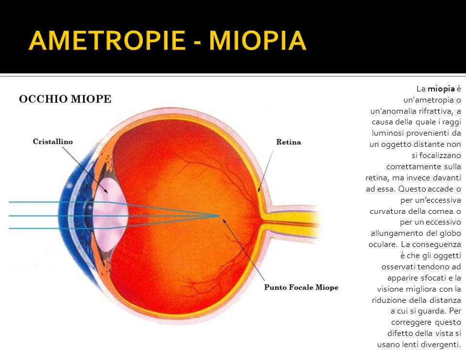 La miopia è un'ametropia o un'anomalia rifrattiva, a causa della quale i raggi luminosi provenienti da un oggetto distante non si focalizzano corretta