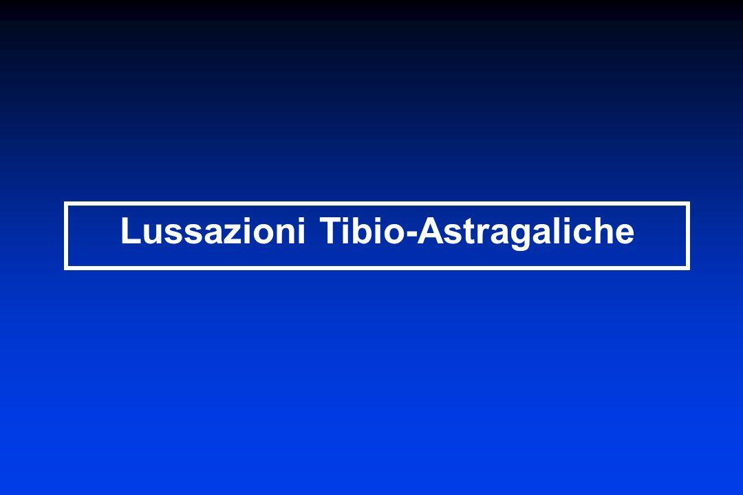 Lussazioni Tibio-Astragaliche