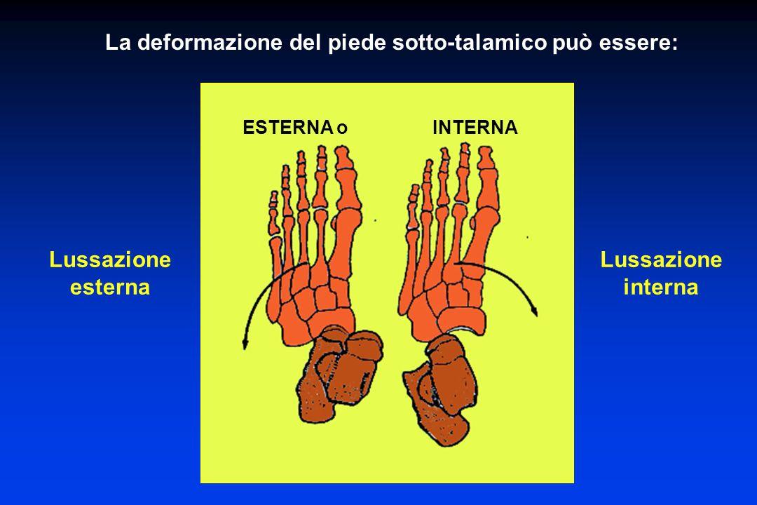 La deformazione del piede sotto-talamico può essere: ESTERNA o INTERNA Lussazione esterna Lussazione interna