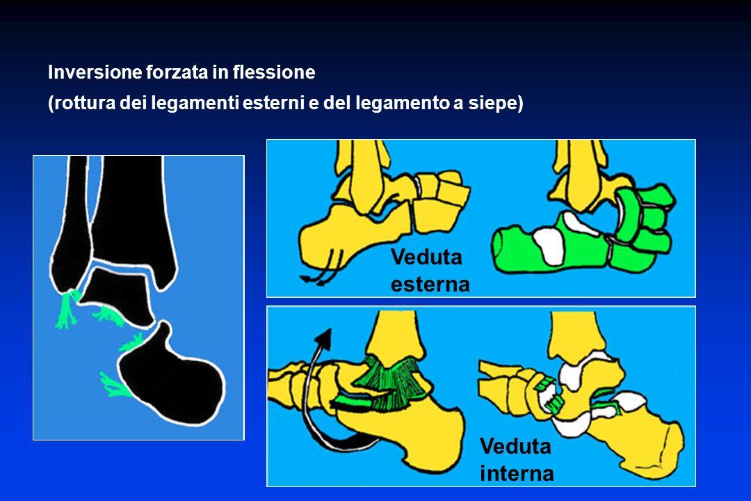 Inversione forzata in flessione (rottura dei legamenti esterni e del legamento a siepe) Veduta esterna Veduta interna