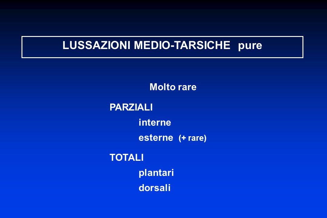 LUSSAZIONI MEDIO-TARSICHE pure Molto rare PARZIALI interne esterne (+ rare) TOTALI plantari dorsali