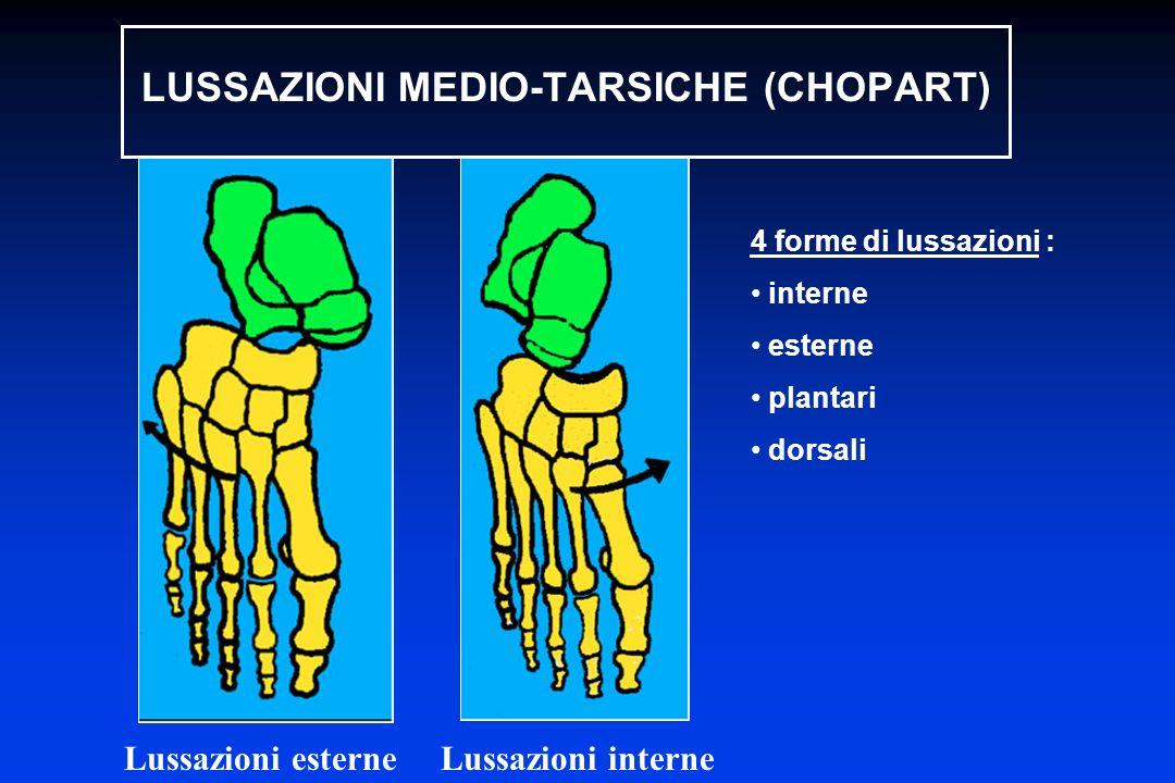 4 forme di lussazioni : interne esterne plantari dorsali Lussazioni esterne Lussazioni interne LUSSAZIONI MEDIO-TARSICHE (CHOPART)