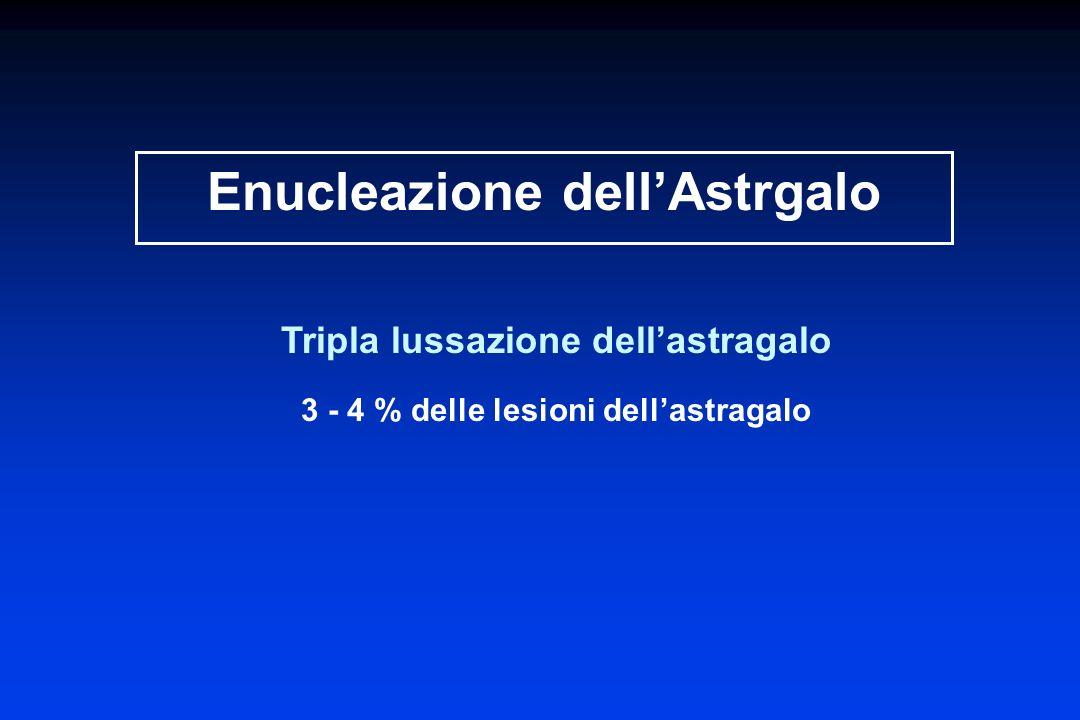 Enucleazione dellAstrgalo Tripla lussazione dellastragalo 3 - 4 % delle lesioni dellastragalo