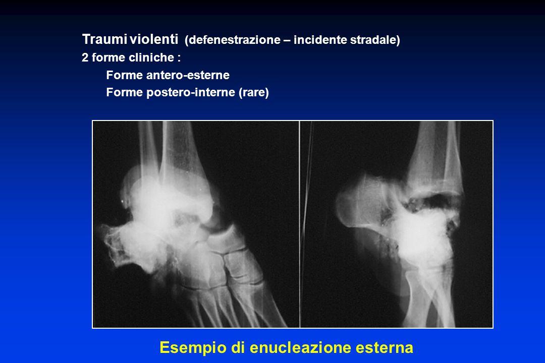 Traumi violenti (defenestrazione – incidente stradale) 2 forme cliniche : Forme antero-esterne Forme postero-interne (rare) Esempio di enucleazione es