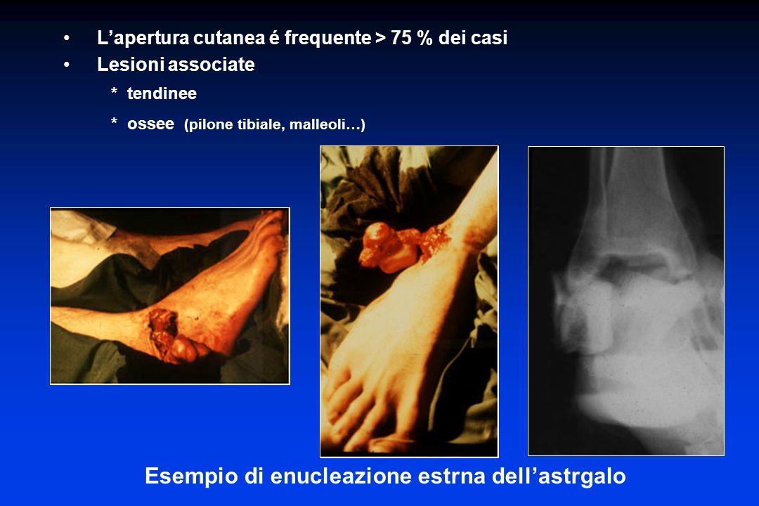 Esempio di enucleazione estrna dellastrgalo Lapertura cutanea é frequente > 75 % dei casi Lesioni associate * tendinee * ossee (pilone tibiale, malleo