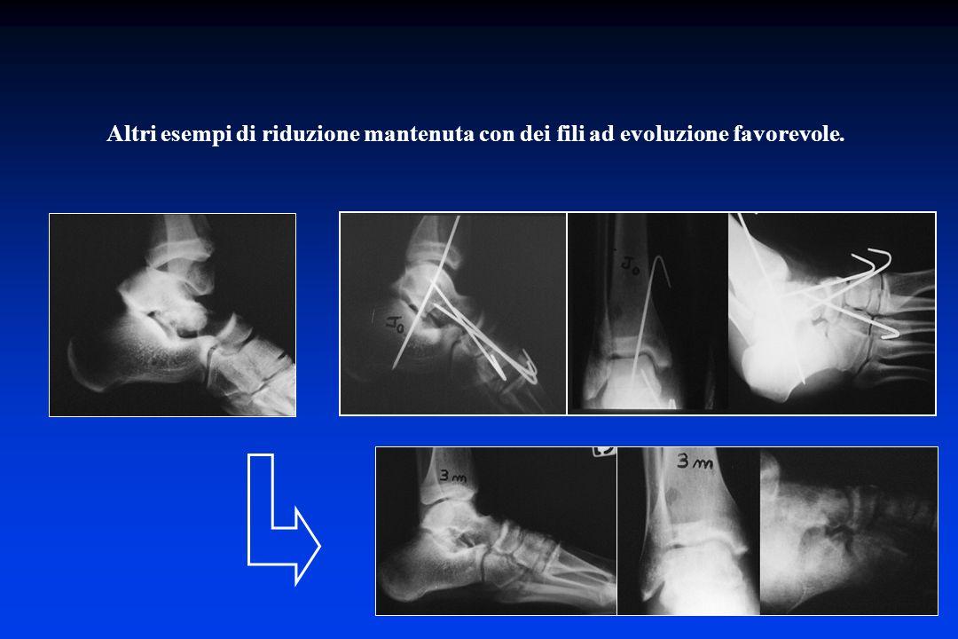Altri esempi di riduzione mantenuta con dei fili ad evoluzione favorevole.