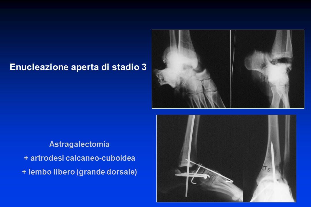 Enucleazione aperta di stadio 3 Astragalectomia + artrodesi calcaneo-cuboidea + lembo libero (grande dorsale)