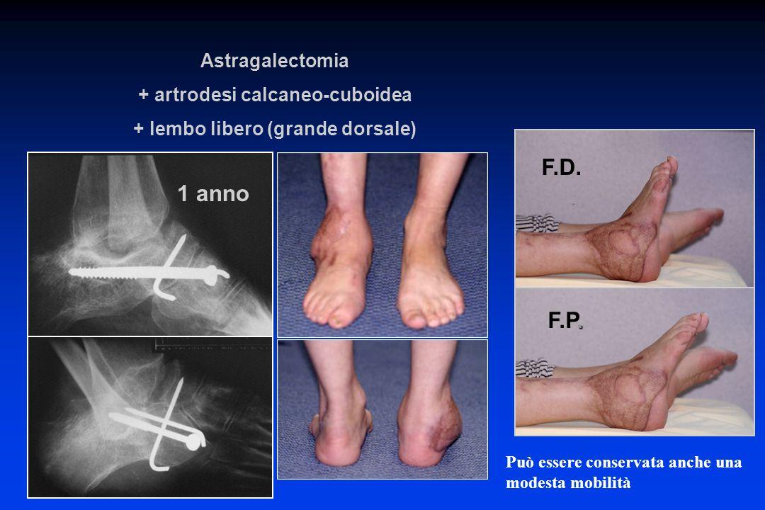 F.D.. F.P. 1 anno Può essere conservata anche una modesta mobilità Astragalectomia + artrodesi calcaneo-cuboidea + lembo libero (grande dorsale)