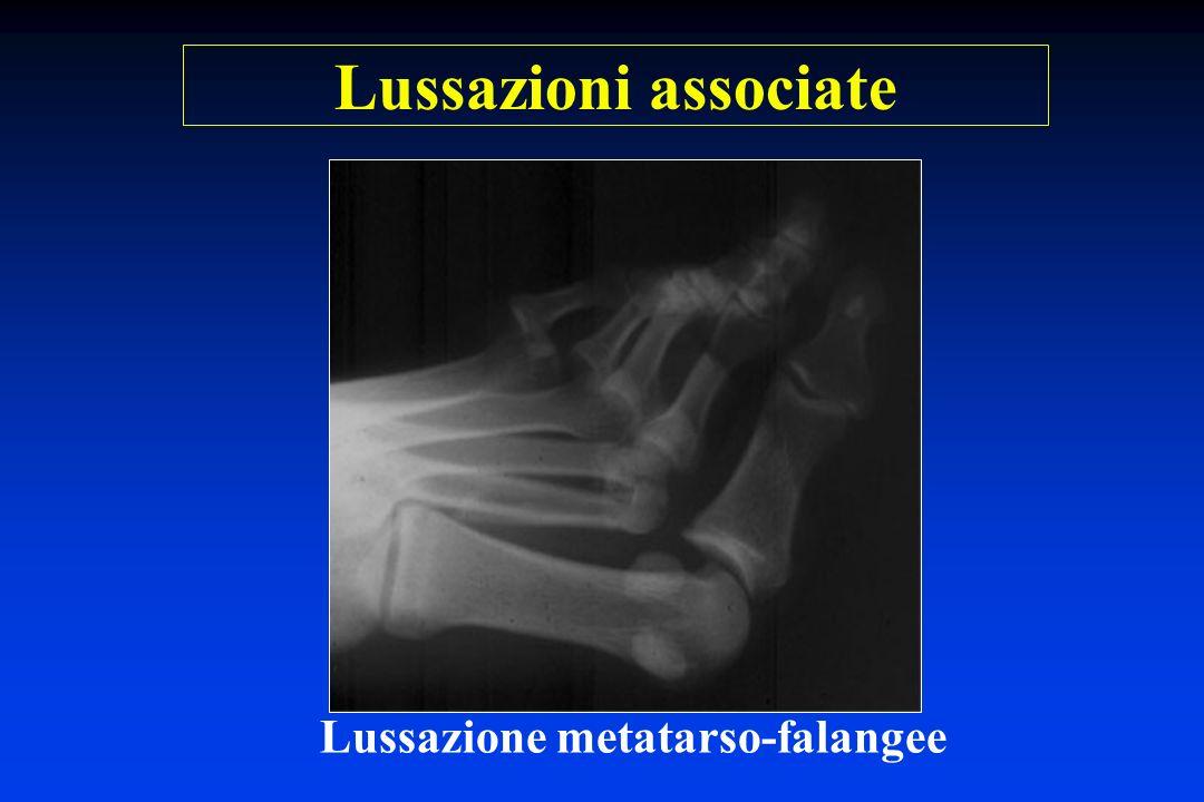 Lussazione metatarso-falangee Lussazioni associate