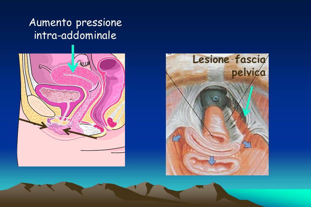 Aumento pressione intra-addominale Lesione fascia pelvica