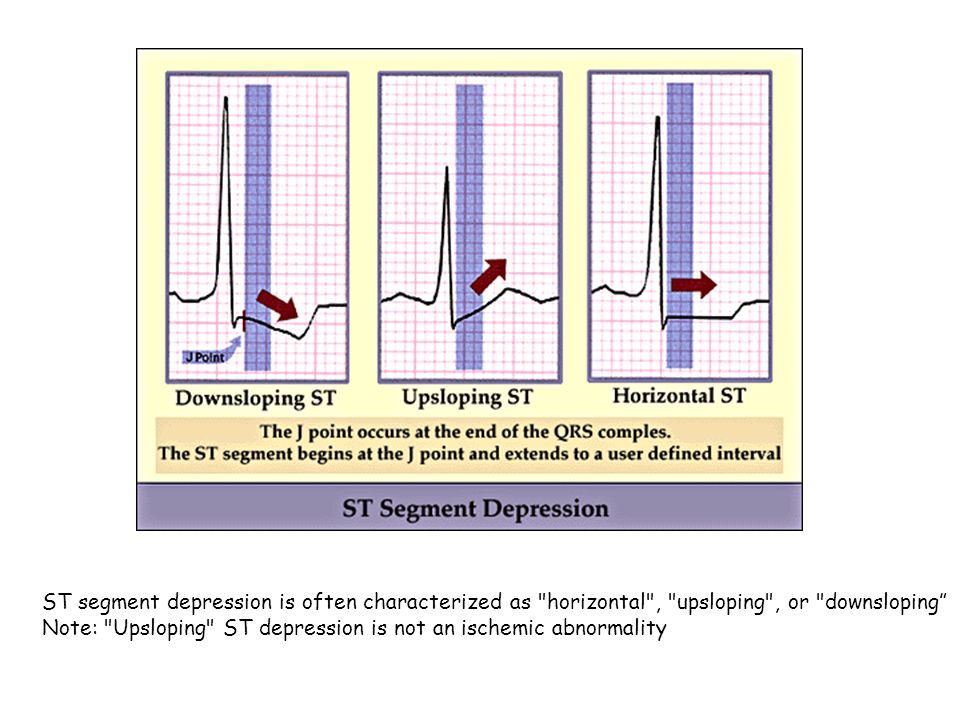 ST segment depression is often characterized as