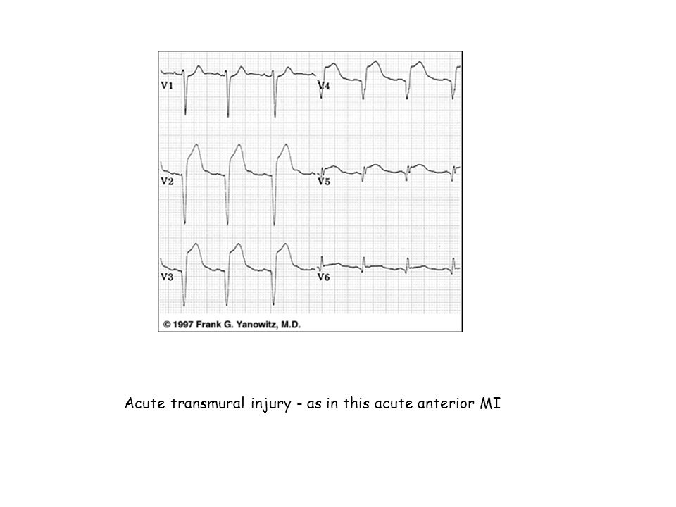 Acute transmural injury - as in this acute anterior MI