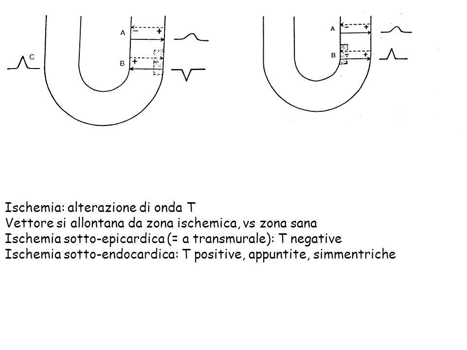 Ischemia: alterazione di onda T Vettore si allontana da zona ischemica, vs zona sana Ischemia sotto-epicardica (= a transmurale): T negative Ischemia sotto-endocardica: T positive, appuntite, simmentriche