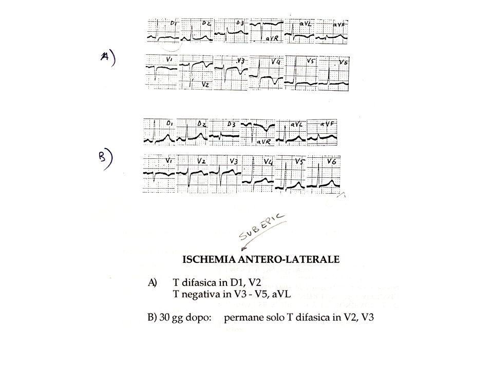 DOLORE TORACICO 1) Origine pleuro-polmonare* pleura parietale - puntura trafittiva, non irradiato - facilmente localizzabile - caratteristiche: lateralita rapporto con atti respiratori rapporto con tosse - Cause:a) pleurite b) embolia polmonare - se c e dolore pleurico e embolia periferica (se embolia di grossi vasi prevale il quadro del cuore polmonare acuto: - dispnea - tachipnea - ipossia - cianosi - ipotensione - dolore e spesso anteriore --> DD IMA c) pneumotorace spontaneo non rappresenta urgenza se non e iperteso --> EO NB: parenchima polmonare non ha sensibilita dolorifica (solo trachea e grossi vasi)