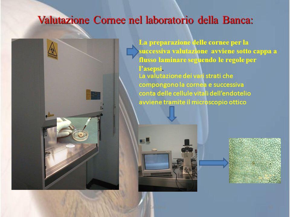 Valutazione Cornee nel laboratorio della Banca: La preparazione delle cornee per la successiva valutazione avviene sotto cappa a flusso laminare segue