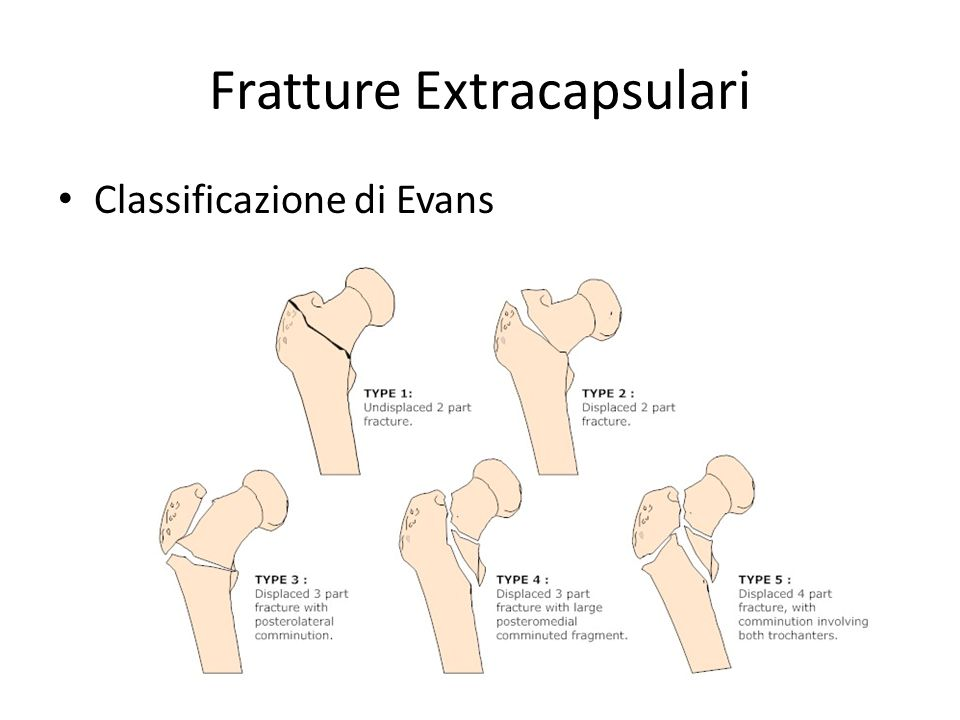 Fratture Extracapsulari Classificazione di Evans