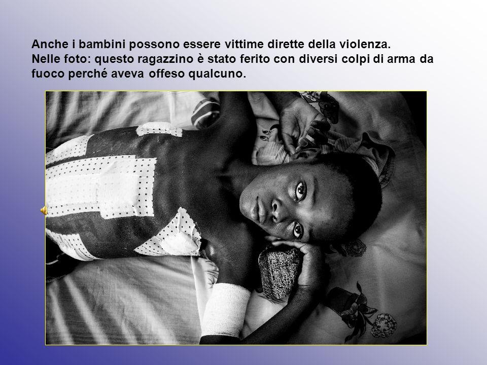 Anche i bambini possono essere vittime dirette della violenza. Nelle foto: questo ragazzino è stato ferito con diversi colpi di arma da fuoco perché a