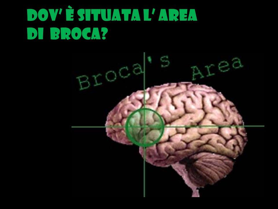 Dov è situata l area di Broca?