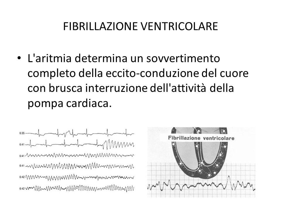 FIBRILLAZIONE VENTRICOLARE L'aritmia determina un sovvertimento completo della eccito conduzione del cuore con brusca interruzione dell'attività della