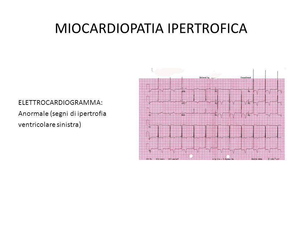 MIOCARDIOPATIA IPERTROFICA ELETTROCARDIOGRAMMA: Anormale (segni di ipertrofia ventricolare sinistra)