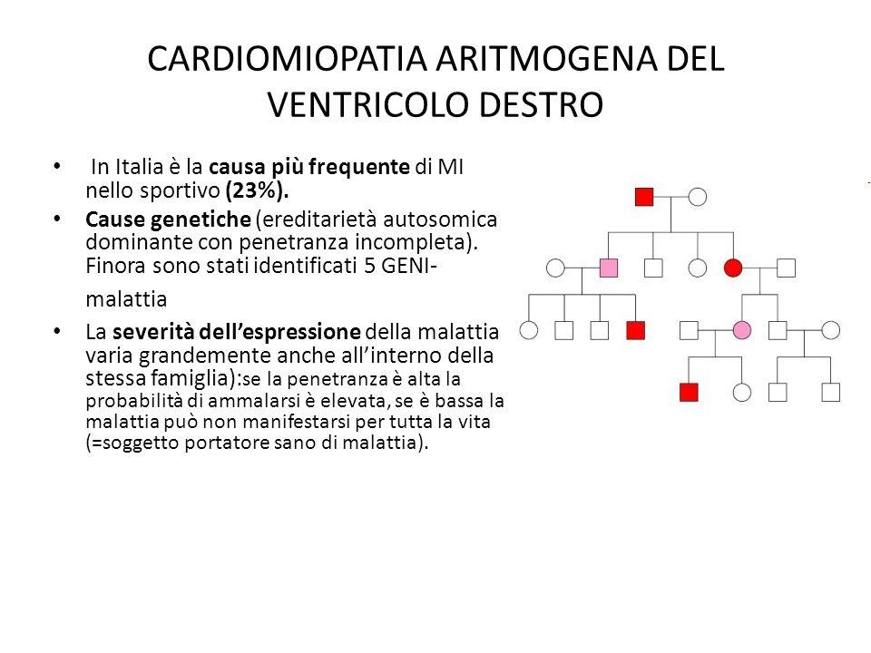 CARDIOMIOPATIA ARITMOGENA DEL VENTRICOLO DESTRO In Italia è la causa più frequente di MI nello sportivo (23%). Cause genetiche (ereditarietà autosomic