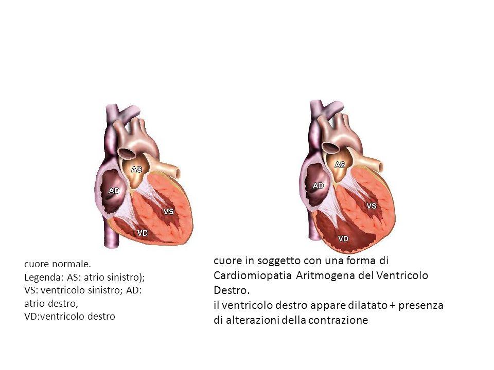 cuore normale. Legenda: AS: atrio sinistro); VS: ventricolo sinistro; AD: atrio destro, VD:ventricolo destro cuore in soggetto con una forma di Cardio