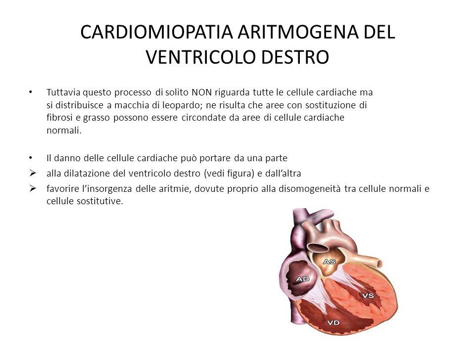 CARDIOMIOPATIA ARITMOGENA DEL VENTRICOLO DESTRO Tuttavia questo processo di solito NON riguarda tutte le cellule cardiache ma si distribuisce a macchi