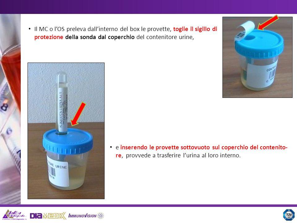 Il MC o lOS preleva dallinterno del box le provette, toglie il sigillo di protezione della sonda dal coperchio del contenitore urine, e inserendo le p