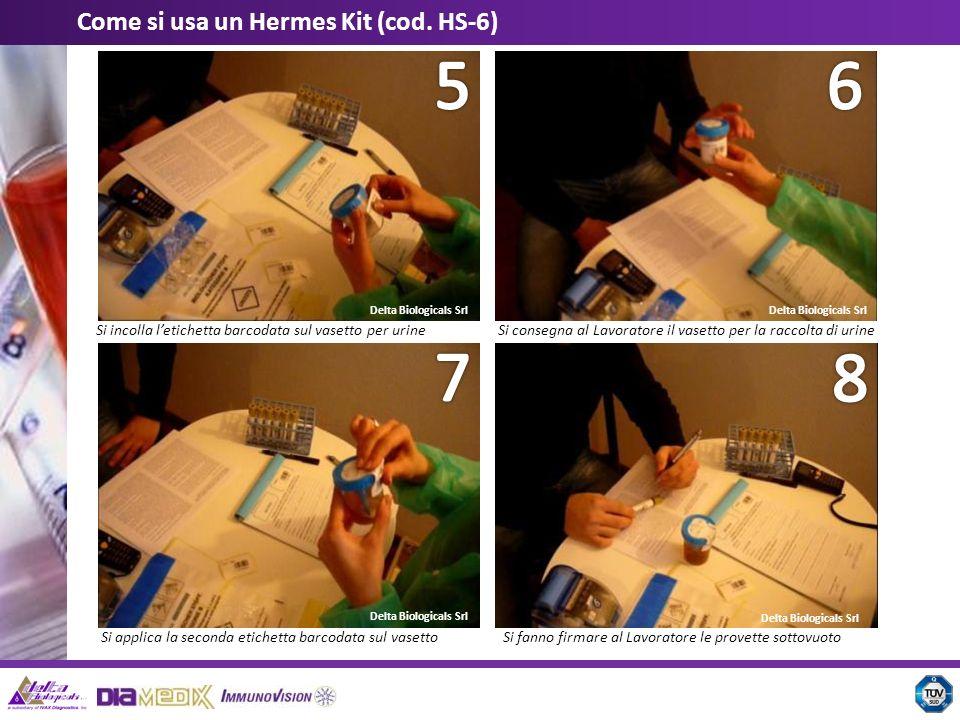 Delta Biologicals Srl Come si usa un Hermes Kit (cod. HS-6) Si incolla letichetta barcodata sul vasetto per urineSi consegna al Lavoratore il vasetto