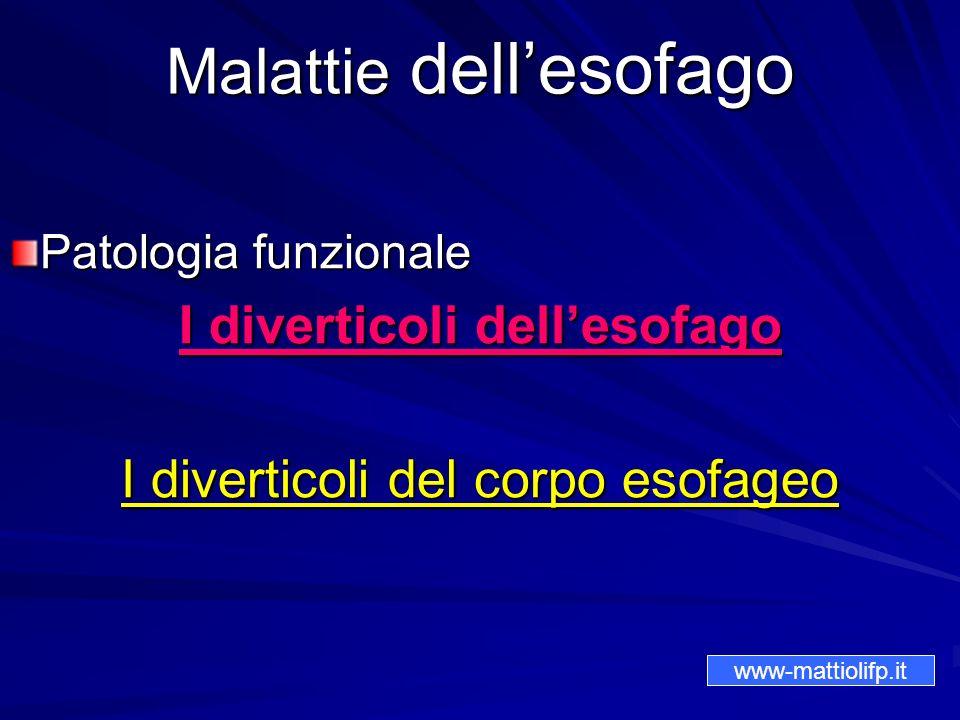 Malattie dellesofago Patologia funzionale I diverticoli dellesofago I diverticoli del corpo esofageo www-mattiolifp.it