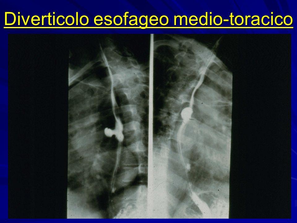 Diverticolo epifrenico in megaesofago