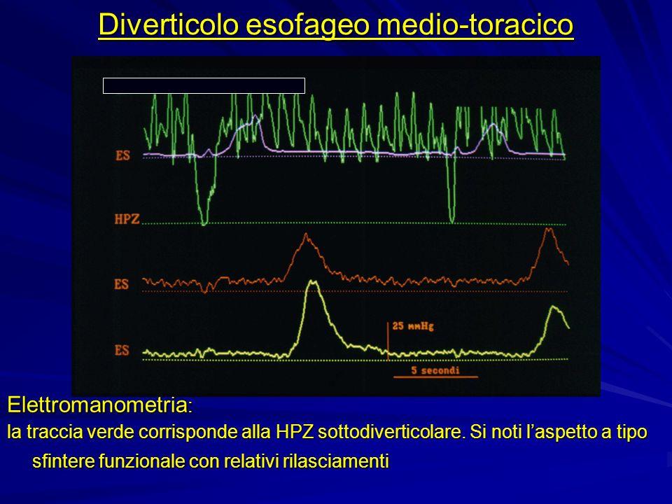 Elettromanometria : la traccia verde corrisponde alla HPZ sottodiverticolare. Si noti laspetto a tipo sfintere funzionale con relativi rilasciamenti