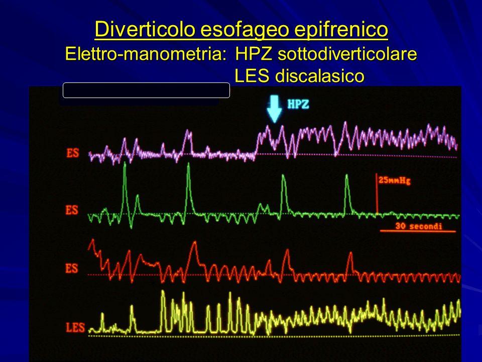 Diverticolo esofageo epifrenico Elettro-manometria: HPZ sottodiverticolare LES discalasico