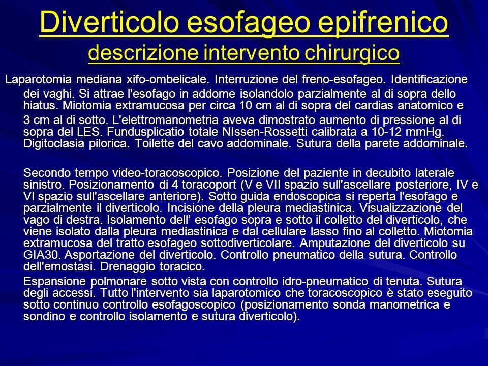 Diverticolo esofageo epifrenico descrizione intervento chirurgico Laparotomia mediana xifo-ombelicale. Interruzione del freno-esofageo. Identificazion