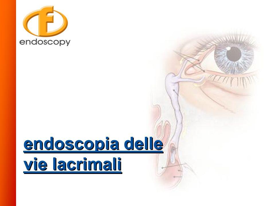 a b c d e f g h i a - puntini lacrimali b - canalicolo c - canale comune d - valvola di Rosenmuller e - sacco lacrimale f - dotto nasolacrimale g - valvola di Hasner h - turbinato inferiore i - meato inferiore CORRELAZIONE TRA IL SISTEMA DI DRENAGGIO LACRIMALE E LE STRUTTURE OSSEE 1 - canalicoli 2 - canale comune 3 - sacco lacrimale 4 - dotto nasolacrimale 5 - valvola di Hasner 6 - meato inferiore 7 - turbinato inferiore 8 - seno mascellare 9 - meato nasale medio 10 - cornetto nasale medio 11 - celle etmoidali 12 - setto nasale FLEXISCOPE SYSTEM 180x Sistema per endoscopia oftalmica Endoscopia delle Vie Lacrimali FLEXISCOPE SYSTEM 180x applicazioni