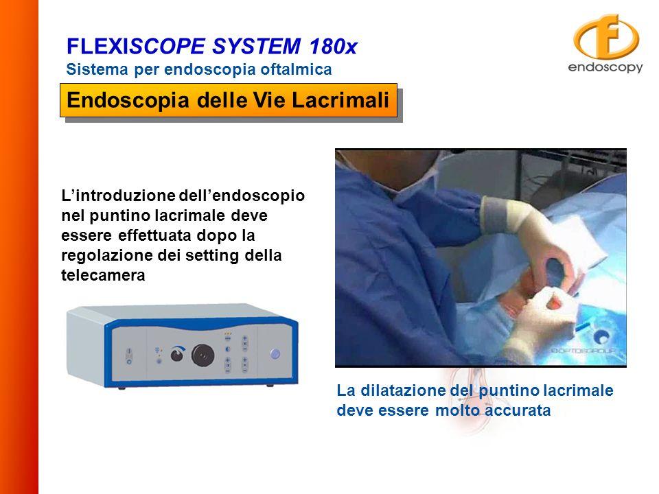 La dilatazione del puntino lacrimale deve essere molto accurata Lintroduzione dellendoscopio nel puntino lacrimale deve essere effettuata dopo la rego