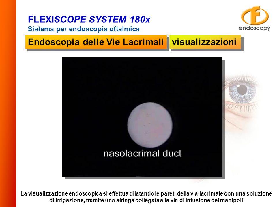 La visualizzazione endoscopica si effettua dilatando le pareti della via lacrimale con una soluzione di irrigazione, tramite una siringa collegata all