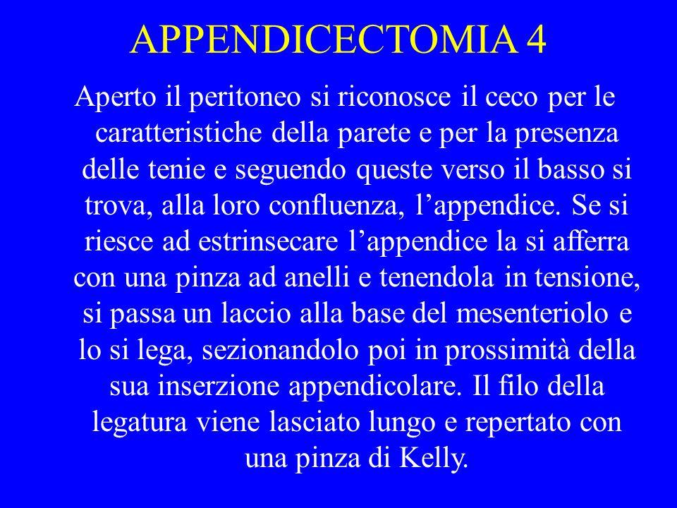 APPENDICECTOMIA 4 Aperto il peritoneo si riconosce il ceco per le caratteristiche della parete e per la presenza delle tenie e seguendo queste verso i