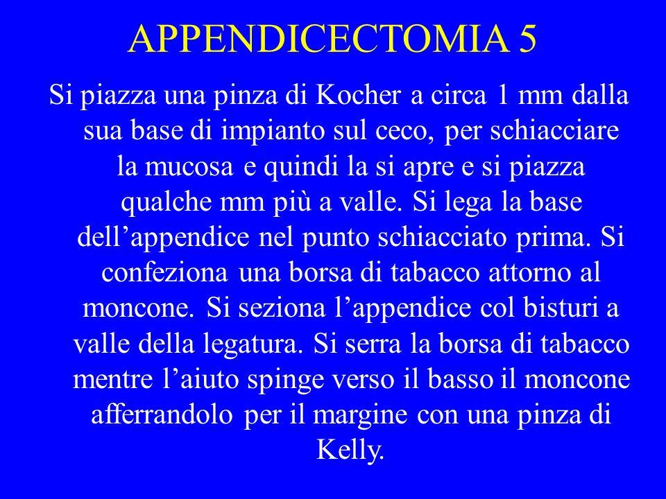 APPENDICECTOMIA 5 Si piazza una pinza di Kocher a circa 1 mm dalla sua base di impianto sul ceco, per schiacciare la mucosa e quindi la si apre e si p