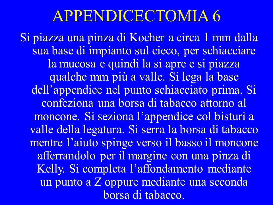 APPENDICECTOMIA 6 Si piazza una pinza di Kocher a circa 1 mm dalla sua base di impianto sul cieco, per schiacciare la mucosa e quindi la si apre e si
