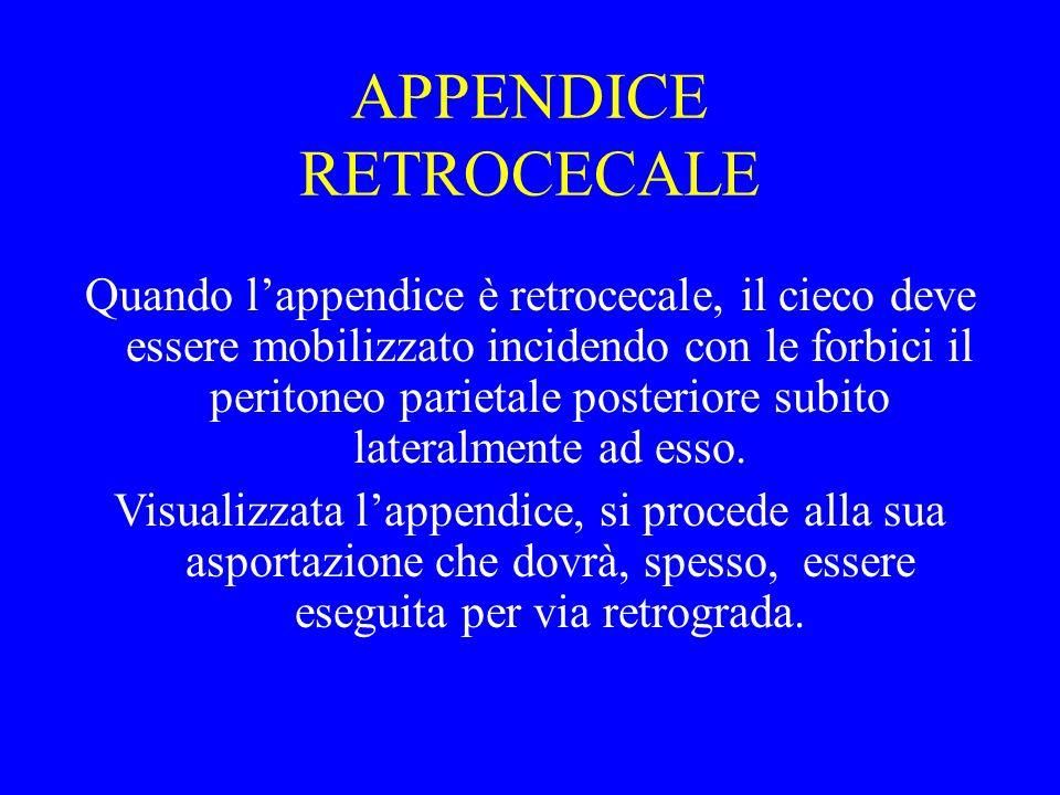 APPENDICE RETROCECALE Quando lappendice è retrocecale, il cieco deve essere mobilizzato incidendo con le forbici il peritoneo parietale posteriore sub