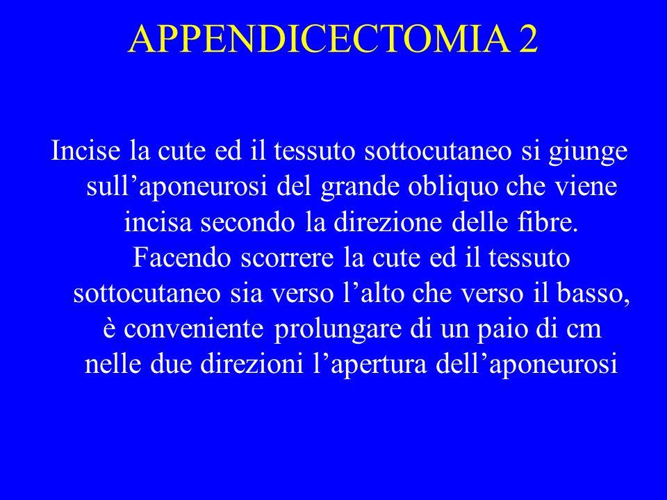 APPENDICECTOMIA 2 Incise la cute ed il tessuto sottocutaneo si giunge sullaponeurosi del grande obliquo che viene incisa secondo la direzione delle fi