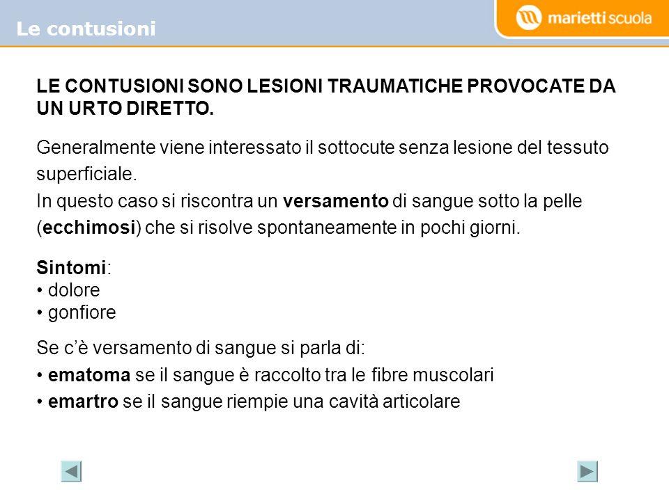 Le contusioni LE CONTUSIONI SONO LESIONI TRAUMATICHE PROVOCATE DA UN URTO DIRETTO. Generalmente viene interessato il sottocute senza lesione del tessu