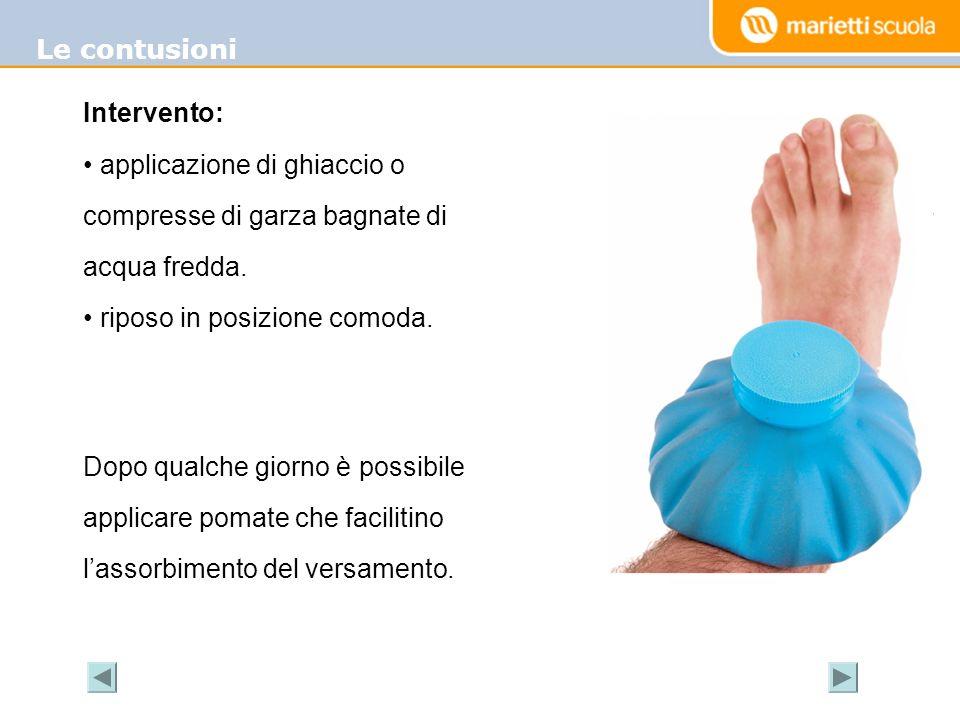 Le contusioni Intervento: applicazione di ghiaccio o compresse di garza bagnate di acqua fredda. riposo in posizione comoda. Dopo qualche giorno è pos