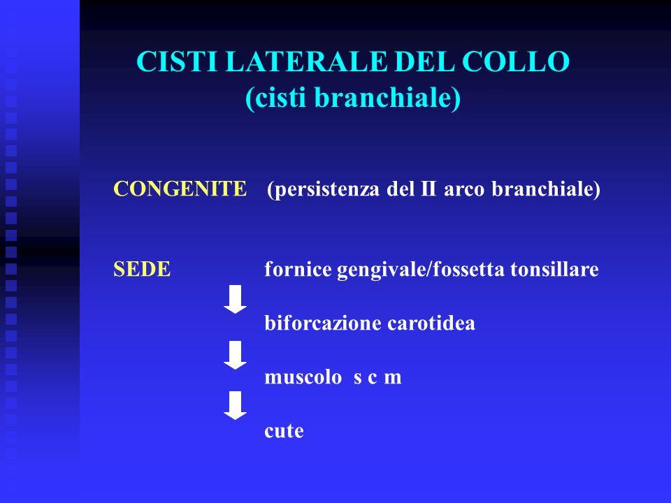 CISTI LATERALE DEL COLLO (cisti branchiale) CONGENITE (persistenza del II arco branchiale) SEDE fornice gengivale/fossetta tonsillare biforcazione car