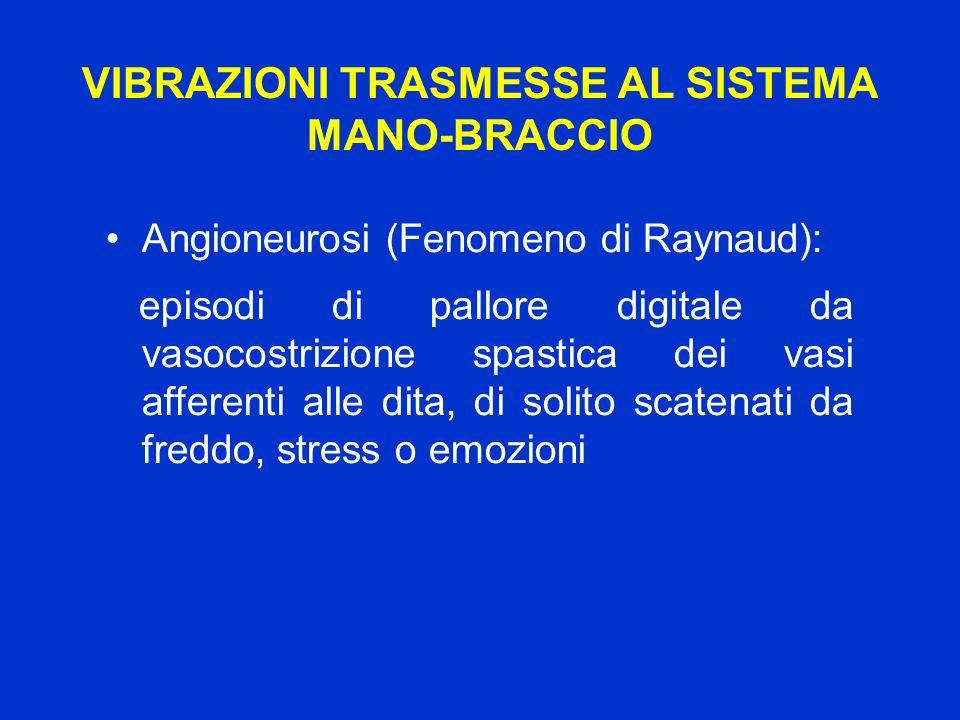 VIBRAZIONI TRASMESSE AL SISTEMA MANO-BRACCIO Angioneurosi (Fenomeno di Raynaud): episodi di pallore digitale da vasocostrizione spastica dei vasi affe