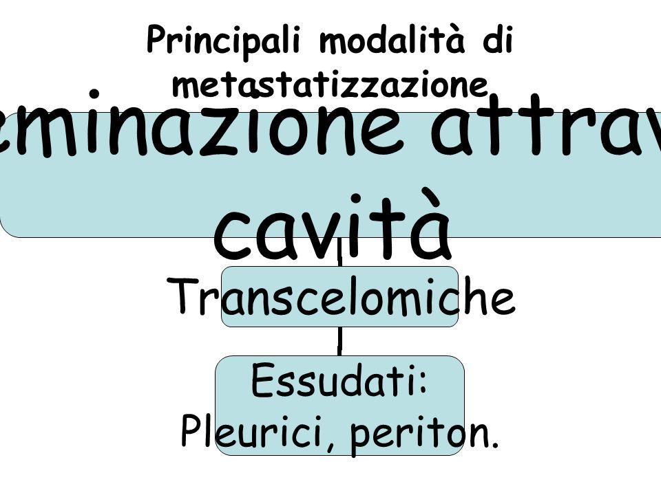 Principali modalità di metastatizzazione Disseminazione attraverso cavità Transcelomiche Essudati: Pleurici, periton.