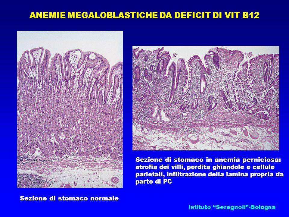 Istituto Seragnoli-Bologna ANEMIE MEGALOBLASTICHE DA DEFICIT DI VIT B12 Sezione di stomaco normale Sezione di stomaco in anemia perniciosa: atrofia de